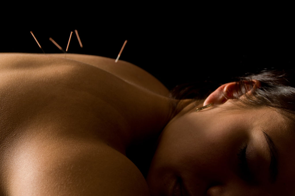 acupuncture can shorten how long your cold lasts.